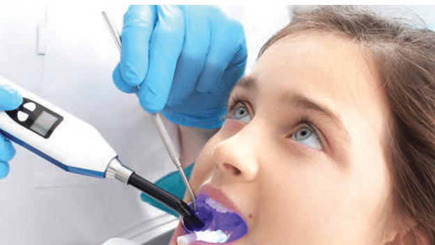 Improving Oral Health With School-Based Sealant Programs course image