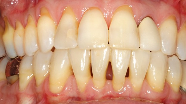 A Closer Look at Gingival Recession course image