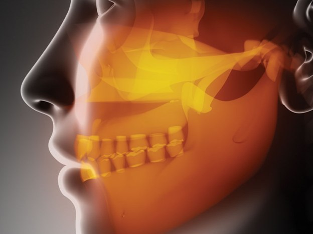 Estrogen and Temporomandibular Disorders course image