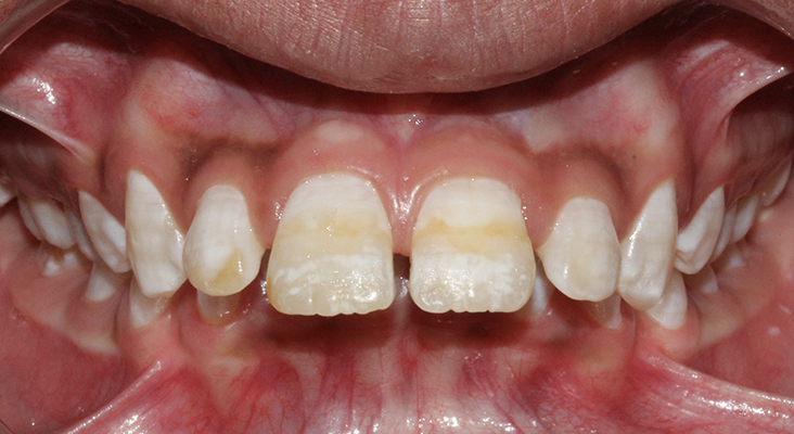 a child with forwardly placed upper teeth, proclination