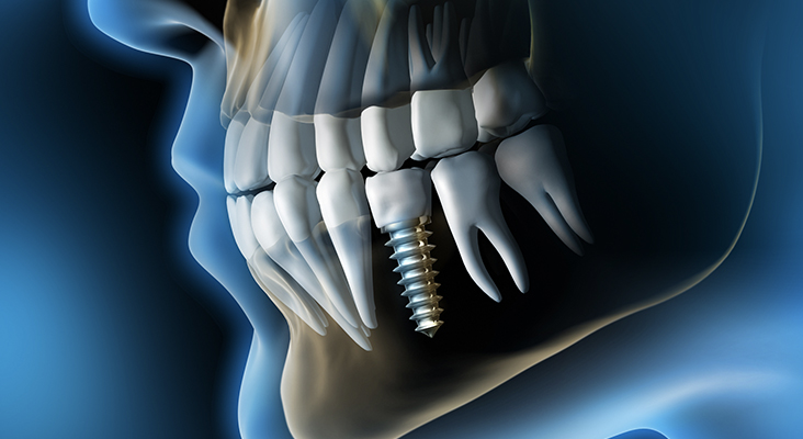 Medical Visualization - Dental Implant in the Jaw - 3D Rendering