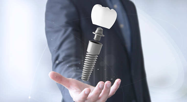 businessman hand with dental implant