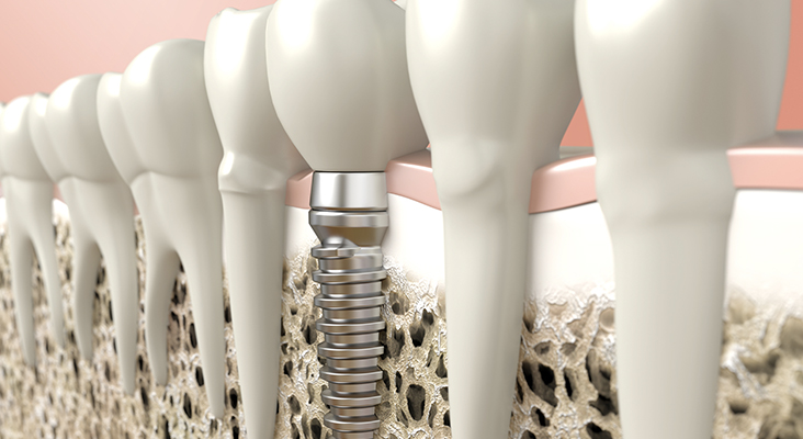 Computer generated image of dental implant