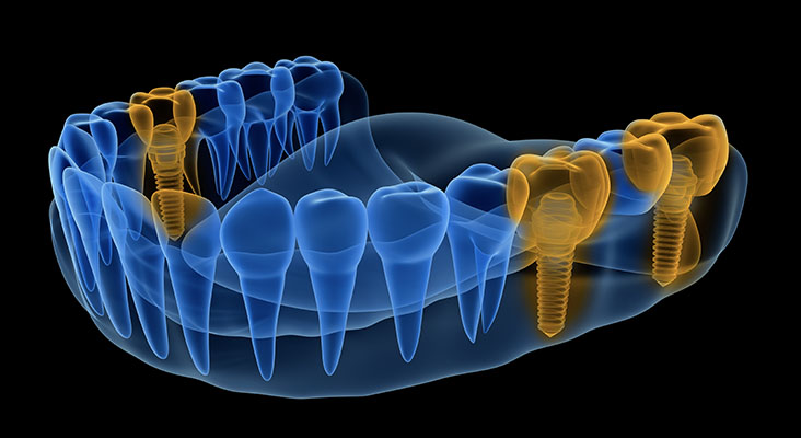 X-ray view of denture with implants . Xray view. Medically accurate 3D illustration