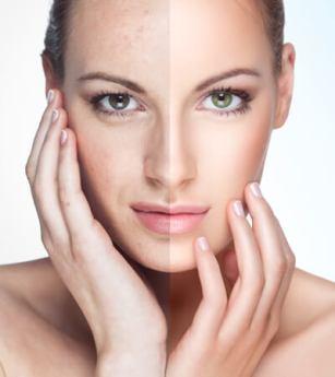 Wrinkles-Acne Scars-Freckles