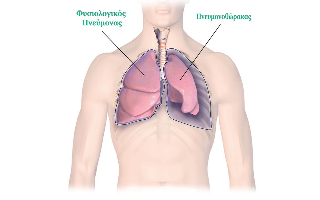 Πνευμοθώρακας