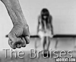 The Bruises