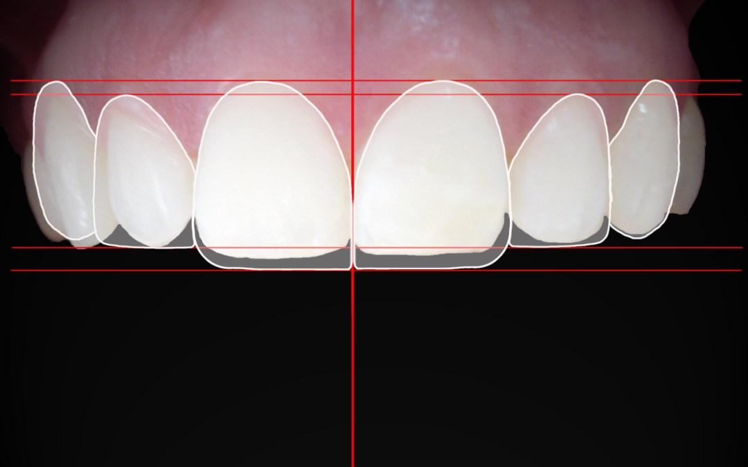 El diseño digital de sonrisas