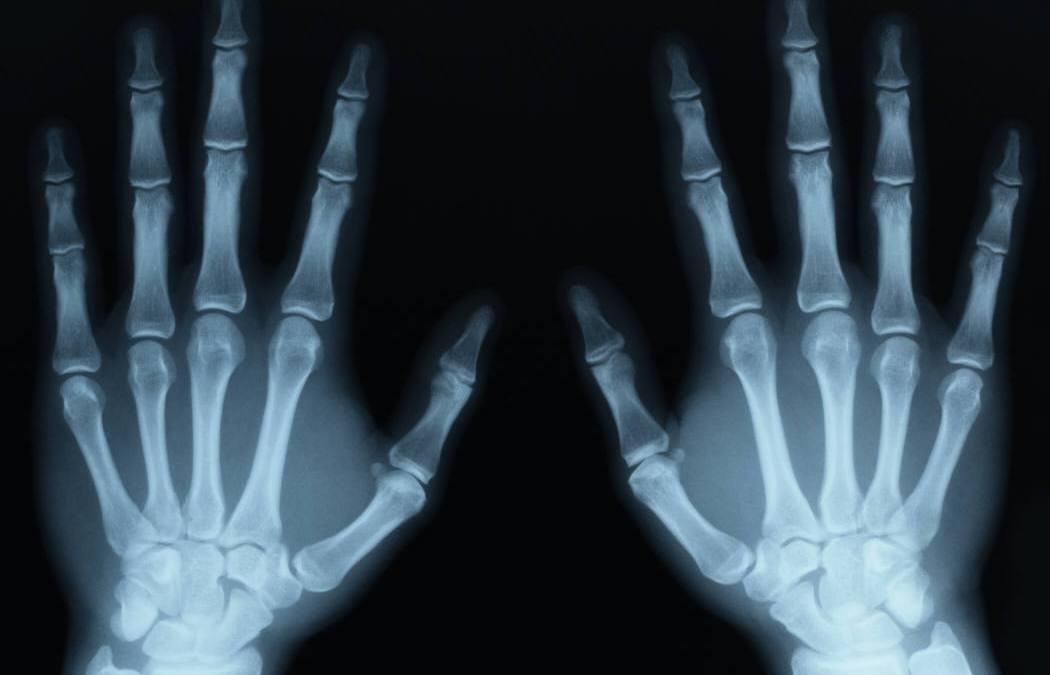 ¿Cómo funcionan los rayos x?