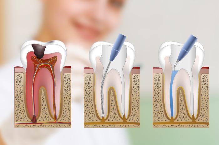 ¿Para qué sirve una endodoncia?