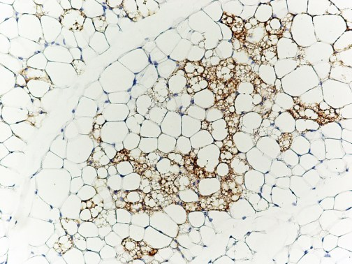 Photo of adipocytes in white adipose