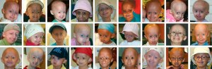An array of 27 photos of children with HGPS