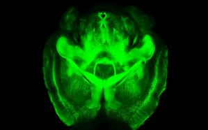 A fluorescent image of a mouse brain