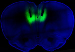 Image of a slice of a brain stained blue with fluorescent green section at the top center