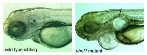 Images of both a wild type zebrafish and a vhnf1 mutant zebrafish. The mutant fish shows abnormal bulging in its upper body.
