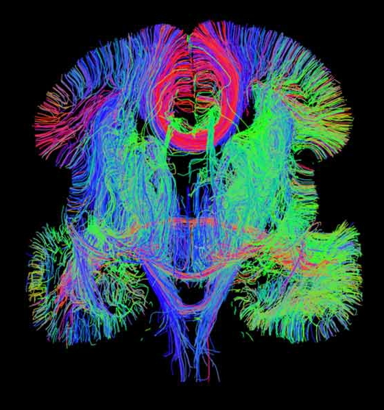 A blueprint for brain development nih directors blog caption an image generated by whole brain diffusion tensor tractography one of a variety of innovative techniques used to create the 3 d gene expression malvernweather Gallery
