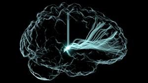 A composite image of neurostimulation
