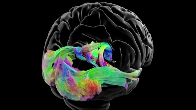 The Amazing Brain: Mapping Brain Circuits in Vivid Color