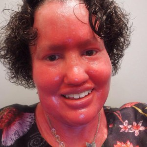 A woman with short dark curly hair, smiling. She has a red face because of Ichthyosis. The photo shows she's wearing a black floral dress and a silver beaded necklace.