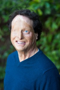 Photo of Josh Miele, a white man with curly brown hair. He has a blue left eye and scars covering his face and right eye. He is smiling at the camera and wearing a blue sweater. He is outside with greenery in the background.
