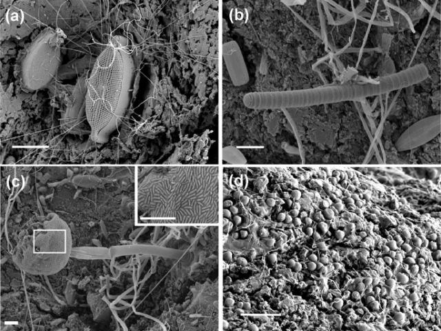 "Scanning electron microscope images showing examples of the rich microbial community on plastic marine debris. From Zettler, Erik Red, Tracy J. Mincer, and Linda A. Amaral-Zettler. ""Life in the 'Plastisphere': Microbial communities on plastic marine debris."" Environmental science & technology (2013)."