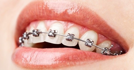 Single or Double-Arch Braces