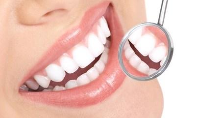 Dental Check-Up