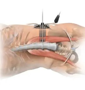 Minimally Invasive XLIF
