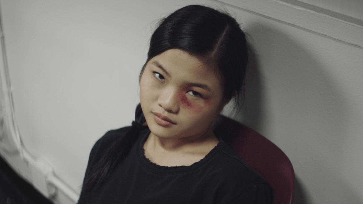 Miya Cech with a black eye as seen in Marvelous and the Black Hole an official Sundance 2021 selection.