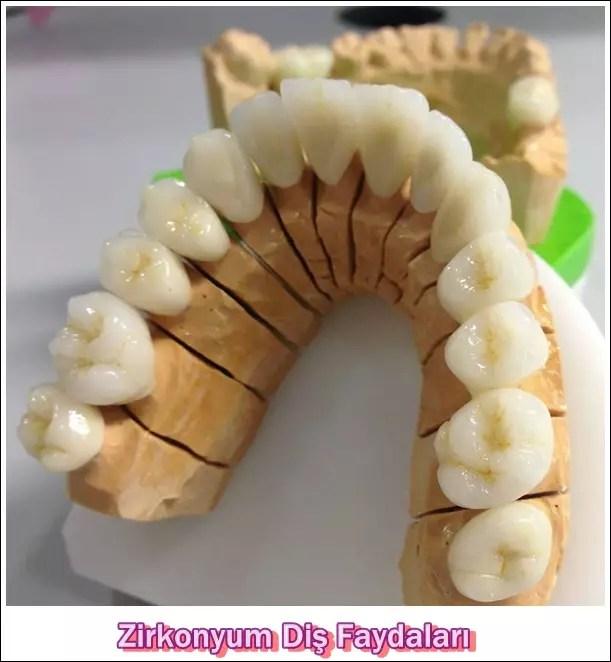 Zirkonyum Diş Faydaları