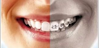 ortodonti ücretleri