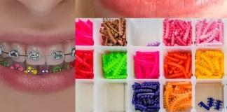 diş teli renkleri fiyatları