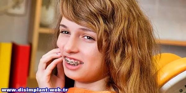 Diş teli taktırmak ağrılı mıdır