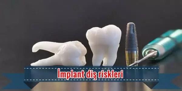 İmplant diş riskleri