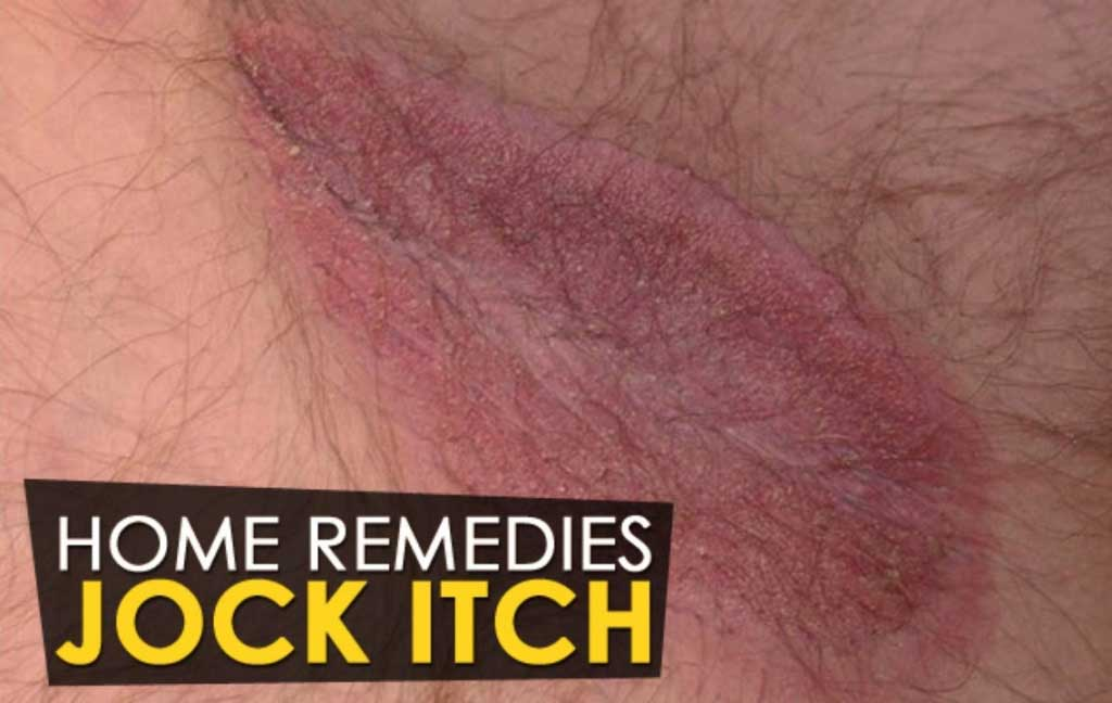 How to Get Rid of Jock Itch Naturally
