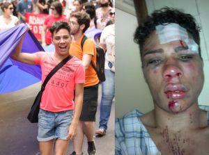 O estudante Willian dos Santos, de 20 anos, foi agredido por dois homens com golpes de socos e pontapés na cidade de Porto Alegre.
