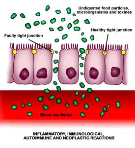 celiac disease and its increased intestinal permeability