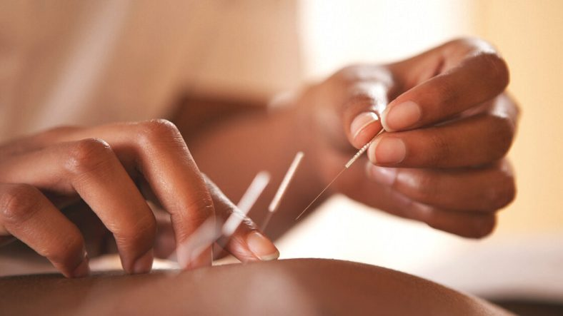 The benefits that can be achieved with acupuncture