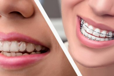Thinking About Getting Invisalign? You Must Read This First