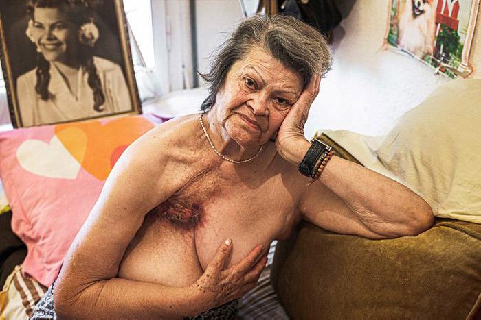 Esther mostra les seqüeles del càncer de mama que va patir als 42 anys.