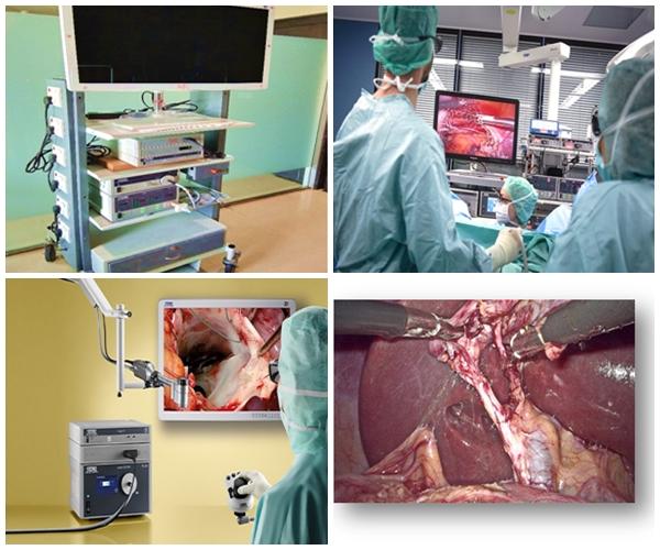 3D Laparoscopic Surgeries