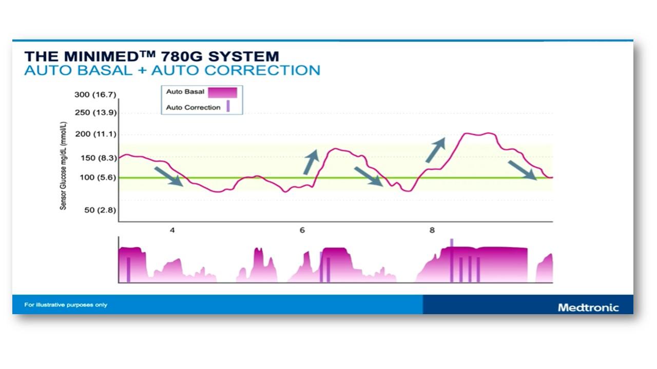 Medtronic MiniMed 780G ile Control-IQ sistemleri ve yapılan çalışmalar - diyabet gelişmeleri