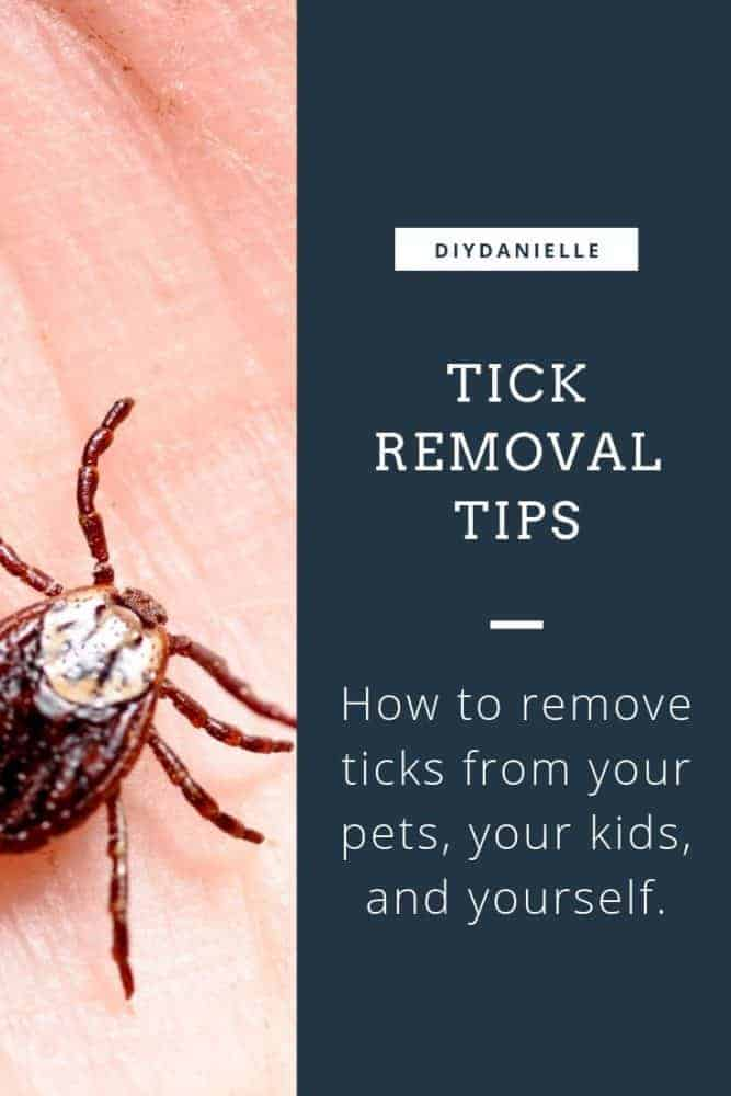 Tick removal tips: How to remove ticks from your pets, your kids, and yourself.