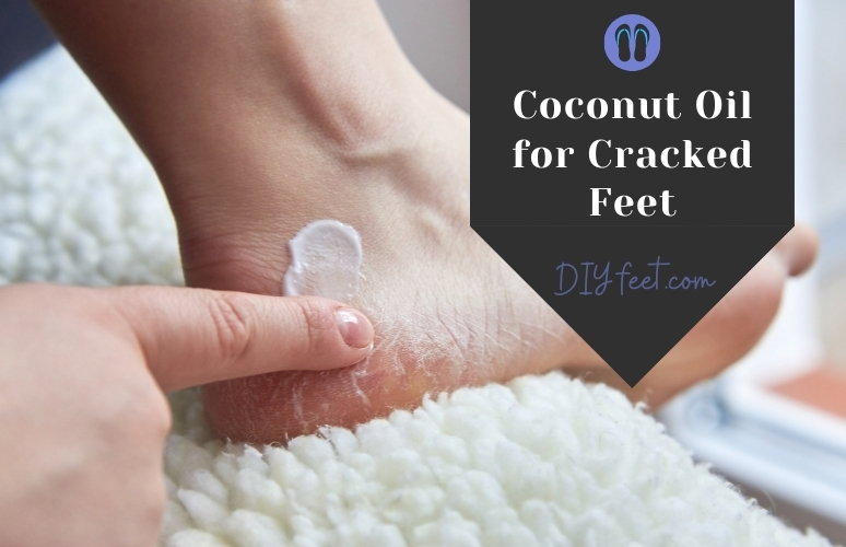 Coconut Oil for Cracked Feet with DIY Foot Soak