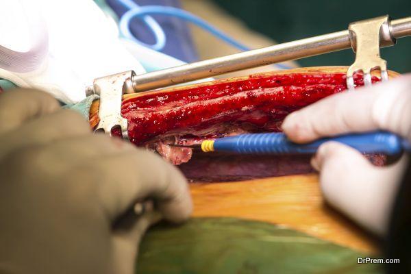 Surgery for Coronary Artery Bypass