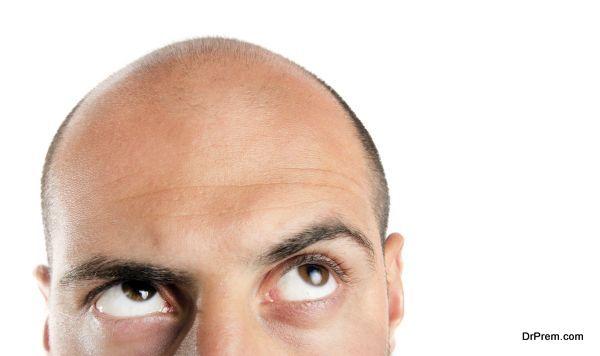 hair-loss-1