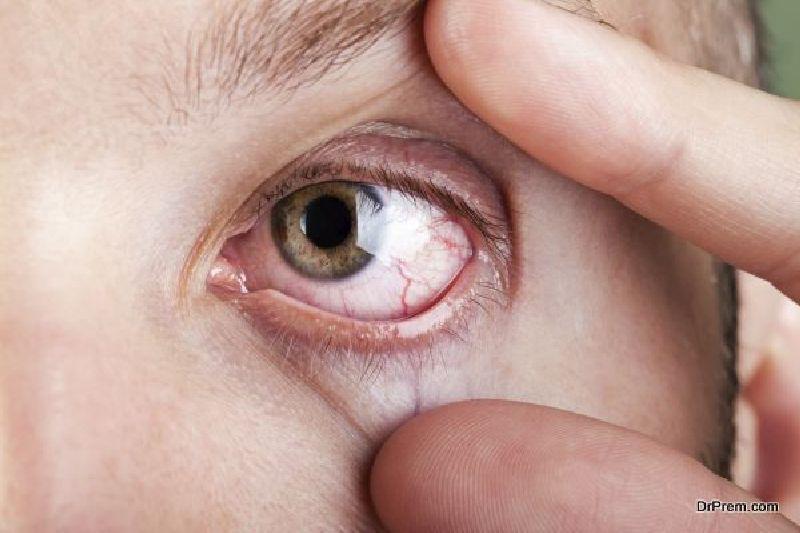 eye-irritation