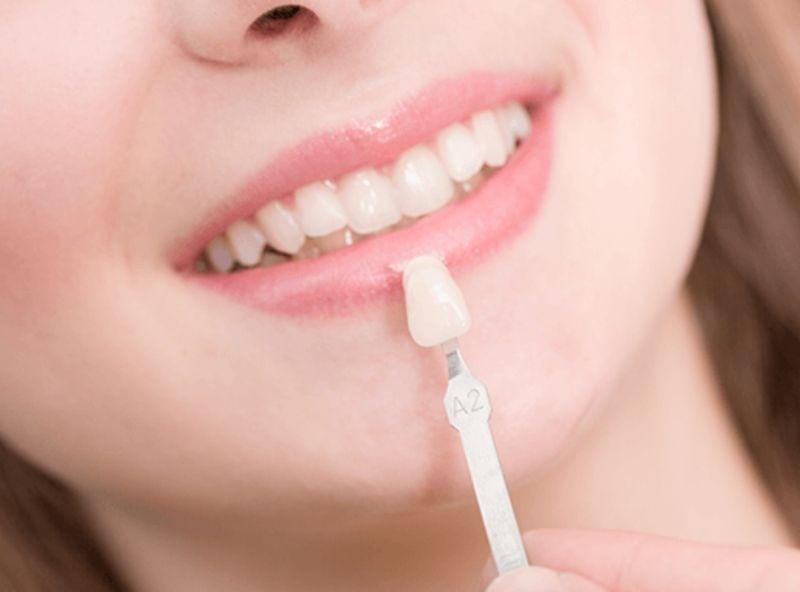 Dental-Abscess