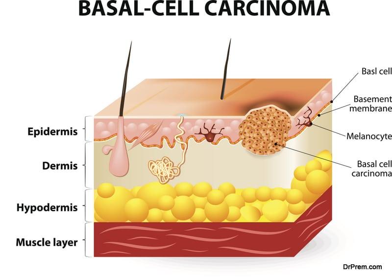 basal carcinoma