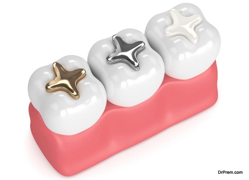 About Mercury in Dental Fillings